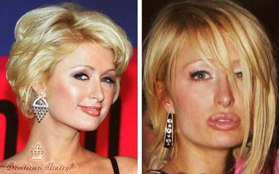 Paris Hilton lip augmentation