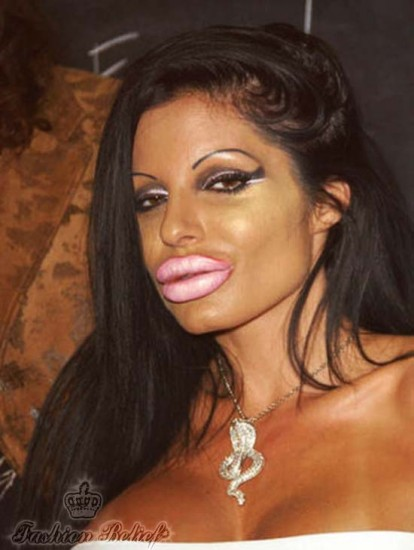 terrible lip augmentation